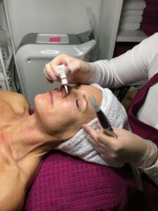 Die Bloggerin Bibi Horst testet das kosmetische Micro-Needling und berichtet ausführlich auf Ihrem Blog darüber.
